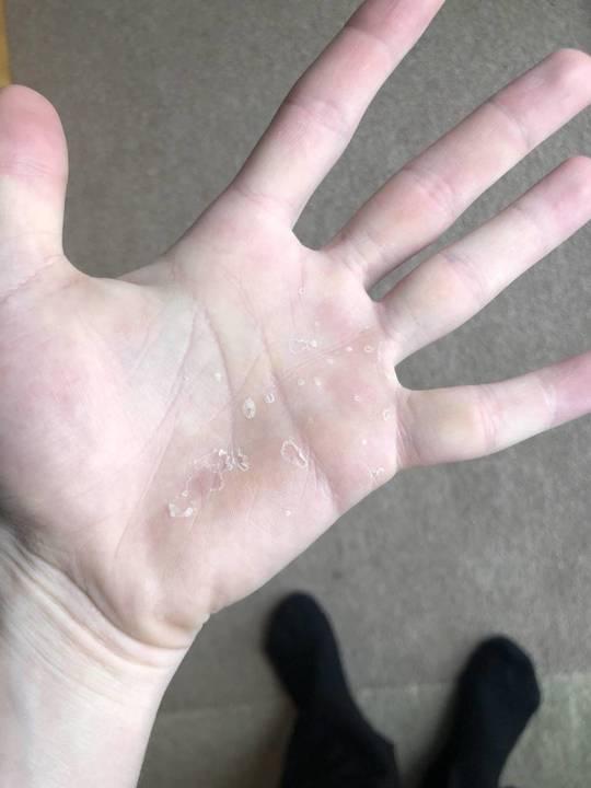 هل تعانين من تقشر الجلد؟ إليك السبب وهذا هو العلاج الطبيعي الفعال