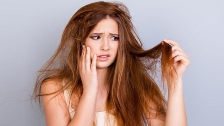 إحذري.. 6 عوامل تساعد في انتشار قشرة الشعر!