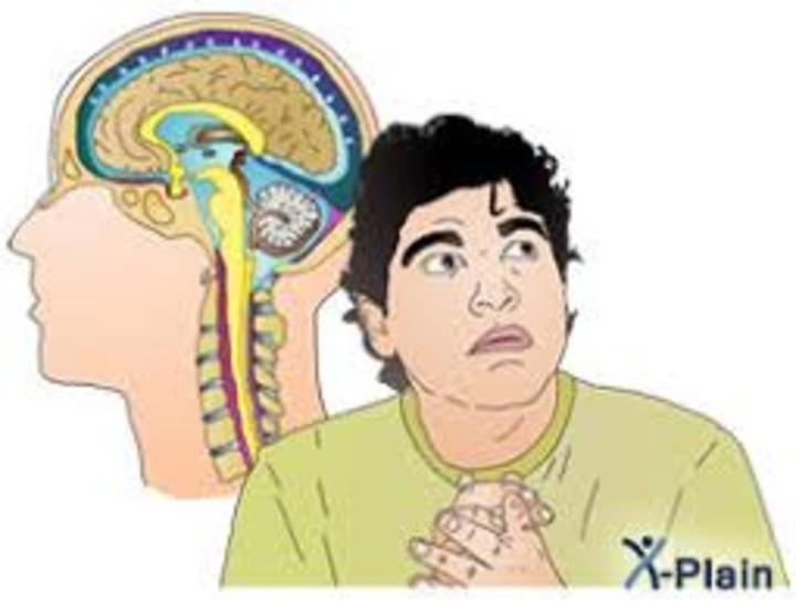 اضطراب الهلع: الأعراض والعلاج