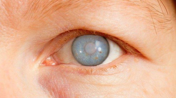 الماء الزرقاء ما هي وما أثرها على العين؟