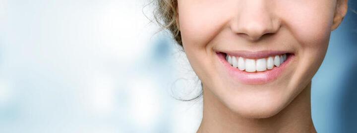 تبييض الأسنان في المنزل.. احصلي على ابتسامة كالنجمات
