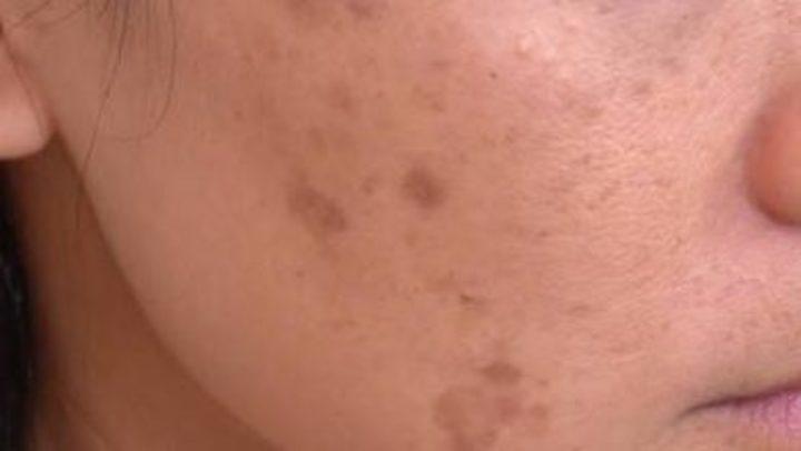 16 علاج لإزالة البقع السوداء في الوجه