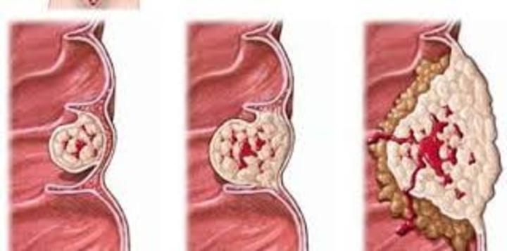 تقرير طبى: سرطان الشرج والفم والبروستاتا تنتقل عن طريق الاتصال الجنسى