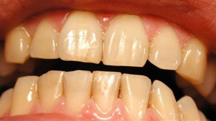 طبيب يكشف عن مكون لتبييض الأسنان بالمنزل