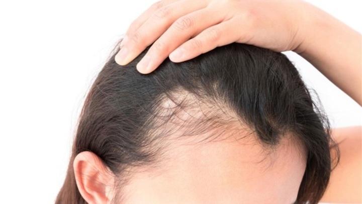 طرق تفادى وعلاج تساقط الشعر