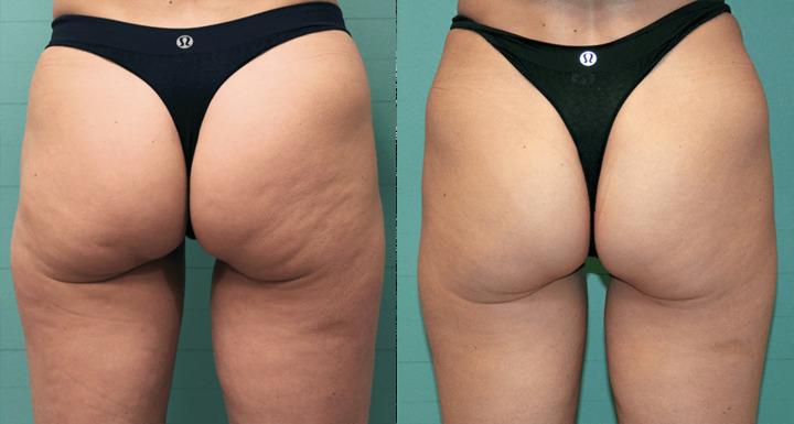 الدكتور وليم وطفة: هذه الطريقة المضمونة لإزالة الدهون المستعصية