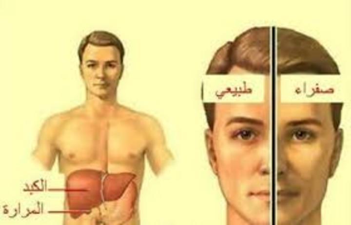 ما هو مرض اليرقان؟