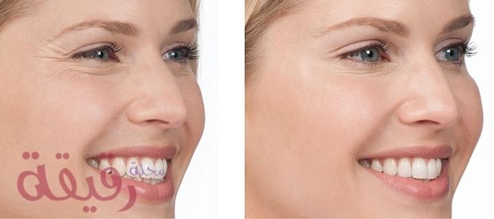 بوتكس الأنف اختيار المشاهير نحو أنف أجمل ووجه أكثر جاذبية