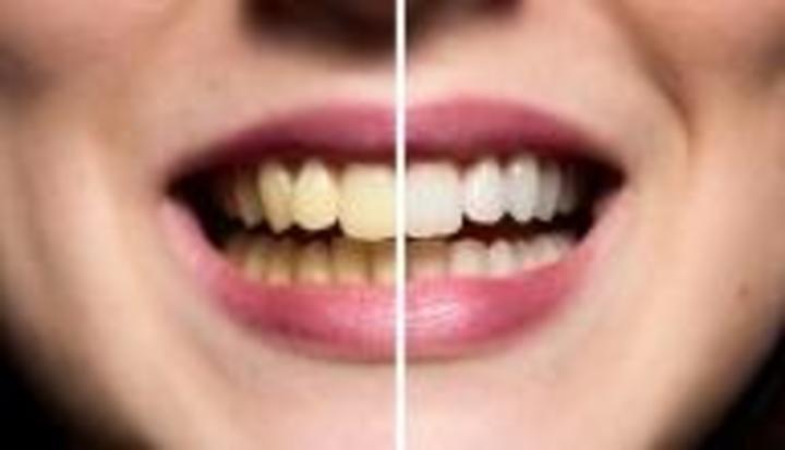 تخلصي من اصفرار الاسنان بهذه الطرق