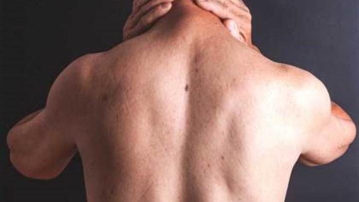 احترس.. ظهور هذا البقعة دليل على الإصابة بـ التهاب السحائي