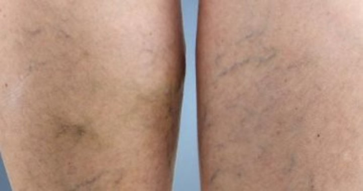 طول أو قصر القامة يؤثر على الإصابة بدوالى الساقين