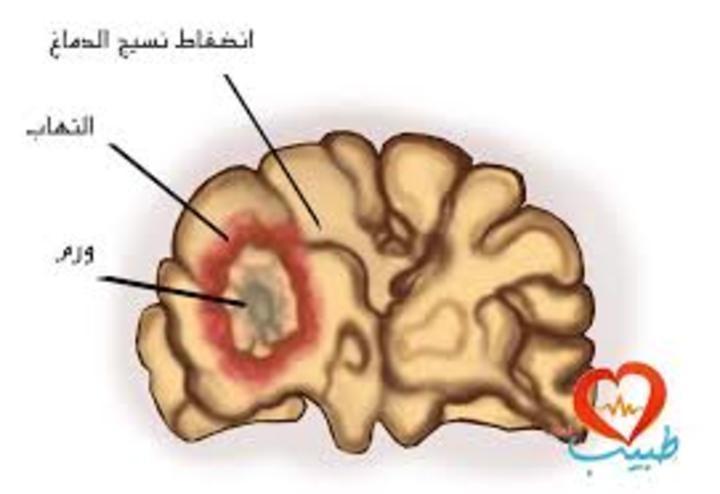 معلومات عن سرطان الدماغ