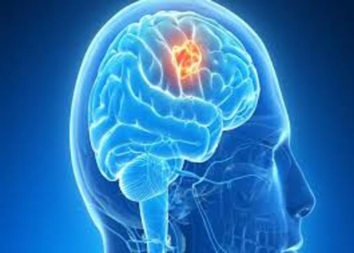 اعراض وعلاج سرطان الدماغ