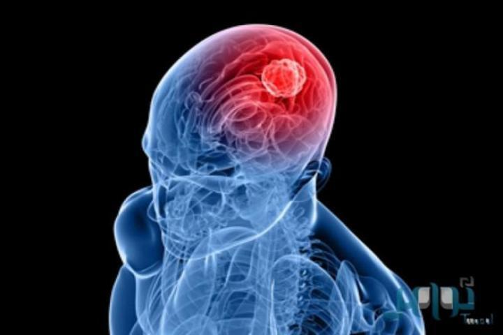 أمل جديد لمرضى سرطان الدماغ.. فريق مصري يبتكر إستراتيجية جديدة للعلاج