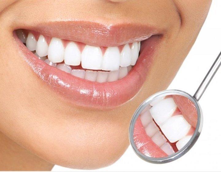 ما هي فوائد الكركم في تبييض اسنان العروس؟