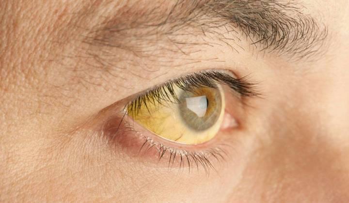 """ظهور مرض """"اليرقان"""" في عين الذهب ما علاقة المياه بهذه الإصابات؟"""