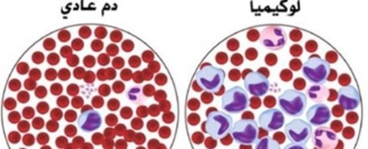 اليك ما يخاص سرطان الدم