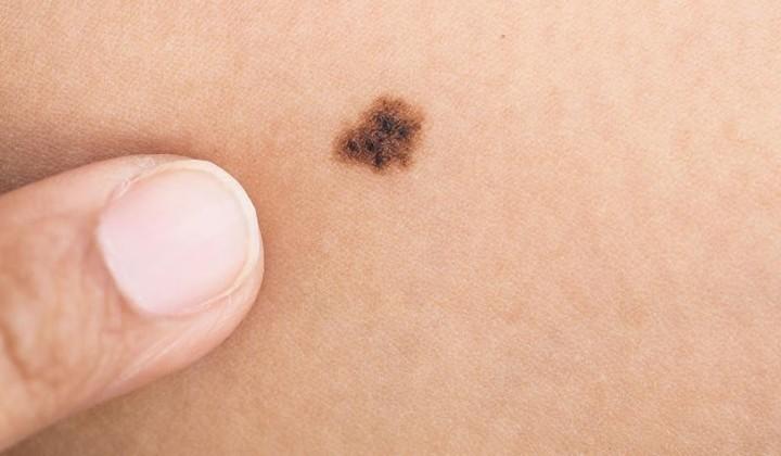 أسرع علاجات طبيعية لمحاربة ظهور الشامات السوداء