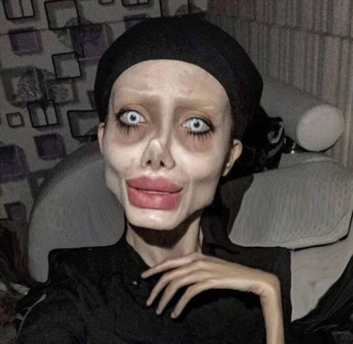 دفعت الملايين لتصبح مثل أنجيلينا جولي فغدت زومبي! (فيديو وصور)