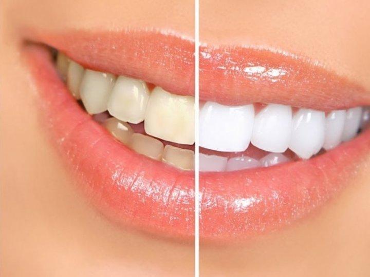 خلطات طبيعية لتبييض الاسنان في المنزل في اسبوع