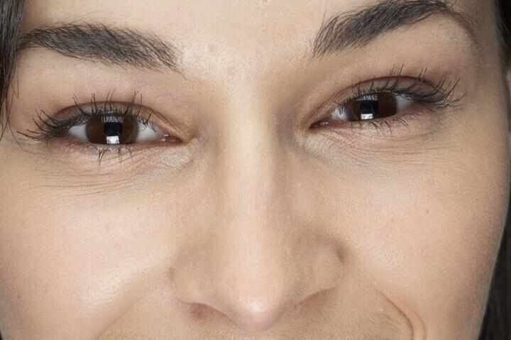 علاج تجاعيد العينين في سن العشرين