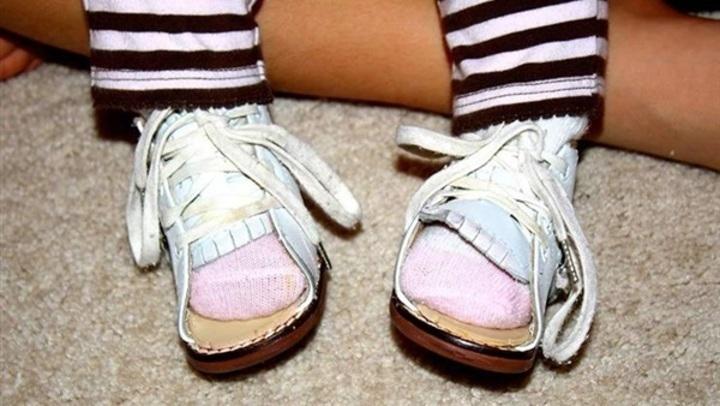 6 خطوات لتجنب مشكلة تقوس الساقين عند الأطفال