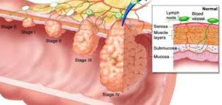 أعراض سرطان الشرج وطرق العلاج والوقاية منه
