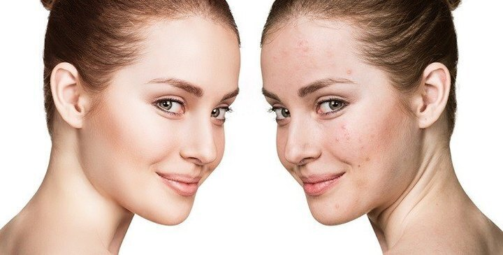 اعرفي الڤيتامينات الهامة للحفاظ على بشرة نضرة