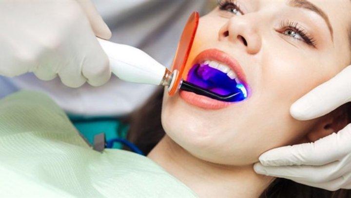 تعرف على أنواع عمليات التجميل المرتبطة بالأسنان.. الليزر أبرزها