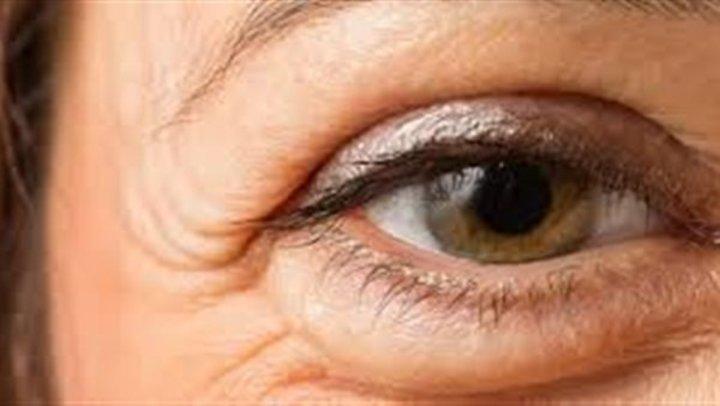 5 أطعمة سحرية تزيل الأنتفاخات والهالات السوداء من حول العين