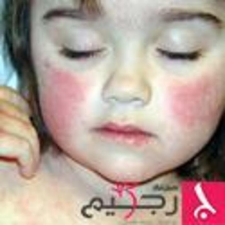 ماذا تعرف عن مرض الوردية الجلدي؟
