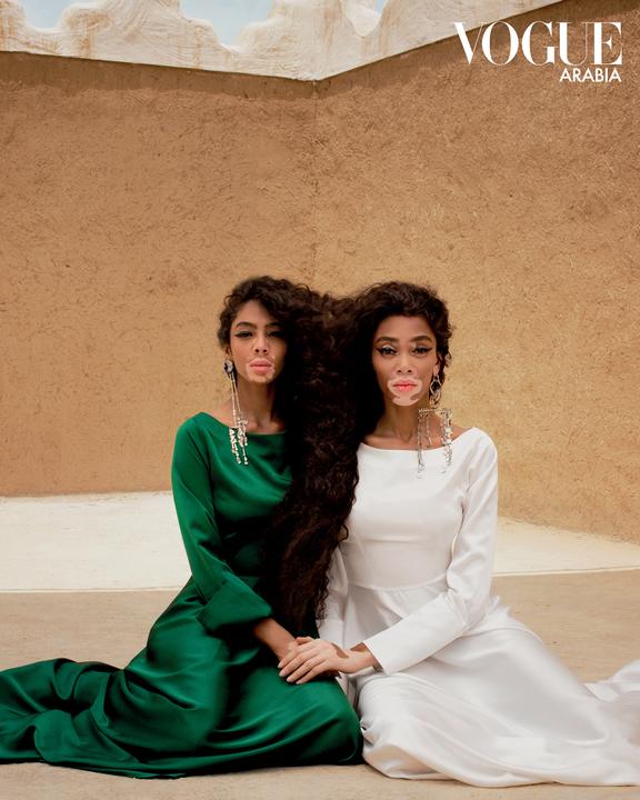 في اليوم العالمي للبهاق: قوموا بمتابعة جميلات انستقرام اللواتي أثبتن أن الجمال يأتي بكل الأشكال