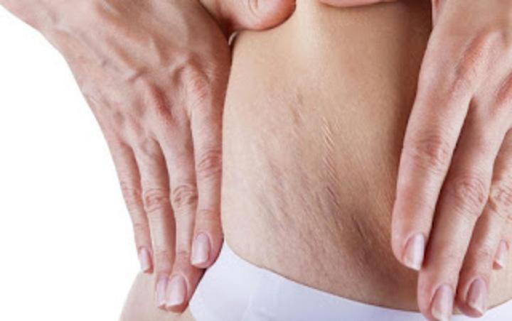 علاج طبيعي للتخلص من علامات تمدد الجلد