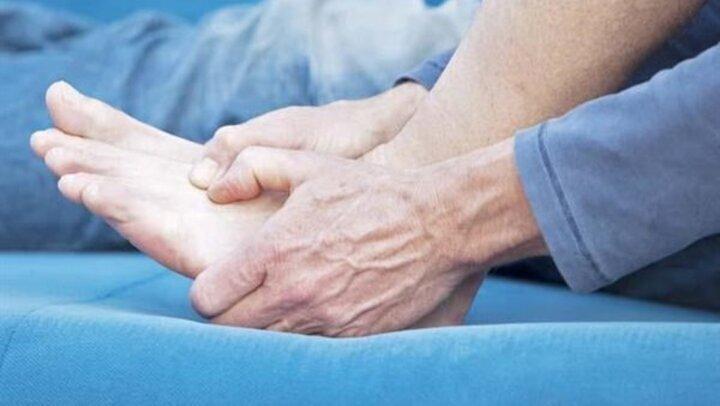 علاج النقرس الحاد .. تحذير| مضاعفات خطيرة يسببها المرض
