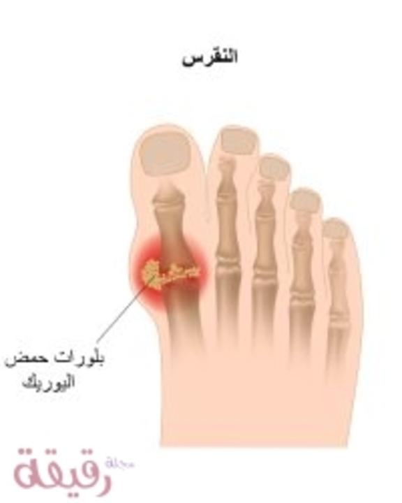 النقرس: الأسباب، الأعراض وطرق العلاج المختلفة بشرح بسيط