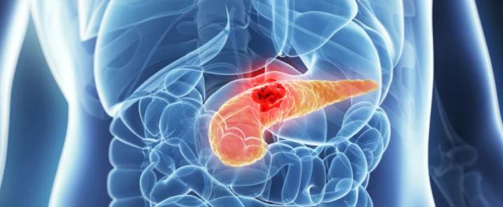 15 حقيقة تجهلينها عن سرطان البنكرياس... وهل من سبل للوقاية منه؟