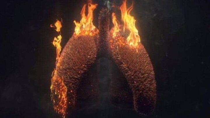للمدخنين.. احرص على الوقاية من سرطان الرئة بـ كوب من هذا الخليط