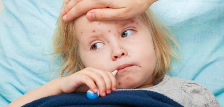 الحصبة في الصغر تزيد الإصابة بأمراض الرئة