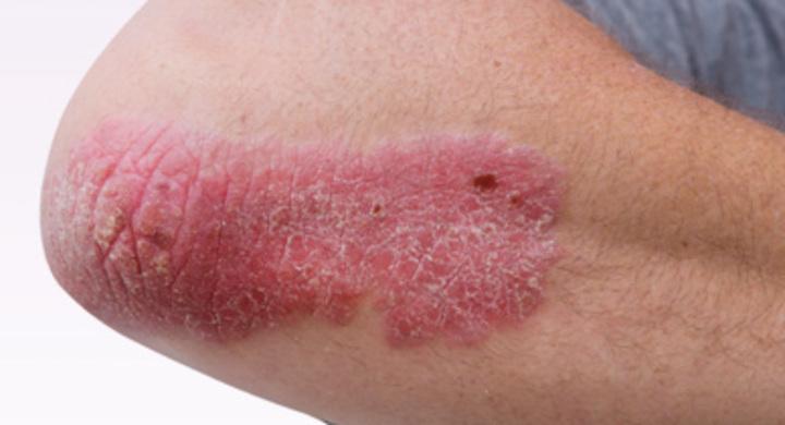 اعراض الذئبة الحمراء ابرزها آلام المفاصل والحمى والطفح الجلدى