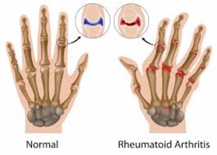 علامات مبكرة للإصابة بالتهاب المفاصل الروماتويدي