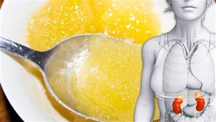احترس قبل تناول العسل فى هذه الحالات يسبب المرض القاتل