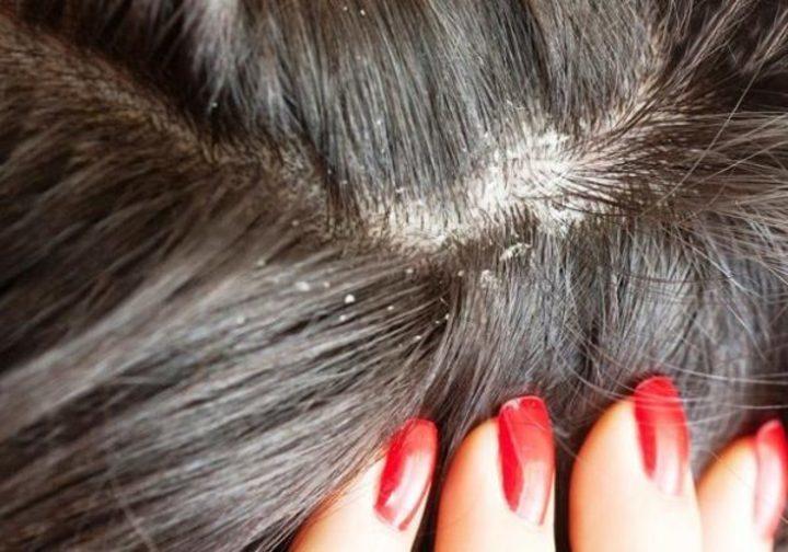 علاج قشره الشعر بسرعه بمواد طبيعية