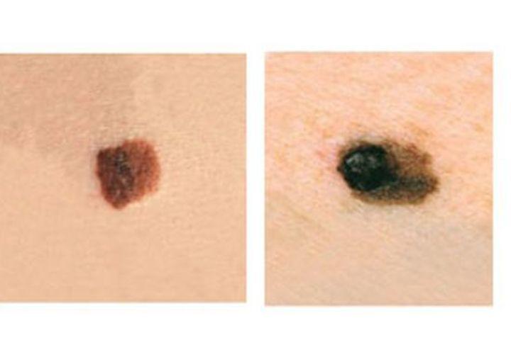 اختبار الدقيقتين الذي أنقذ أكثر من 80 قارئة من مرض سرطان الجلد!