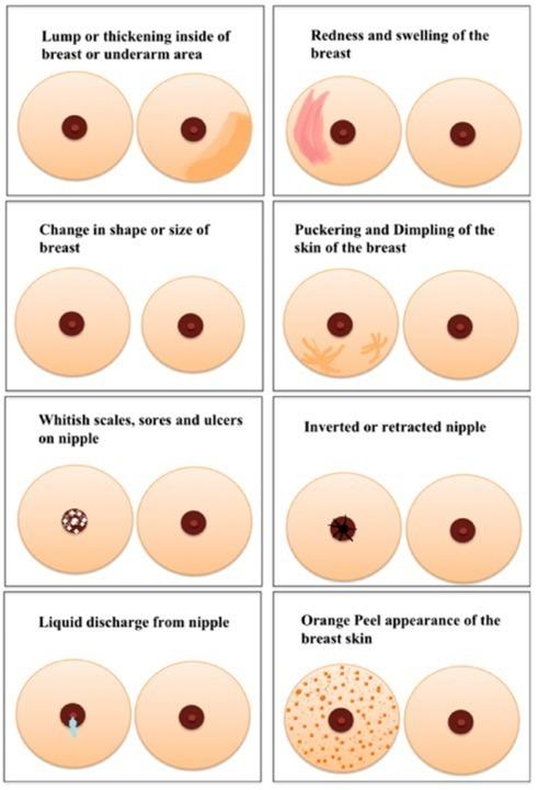 كيف أعرف أني خالية من سرطان الثدي؟