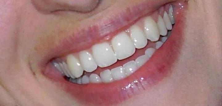 انتبهوا... أزيلوا أطقم الأسنان قبل الخضوع للجراحة