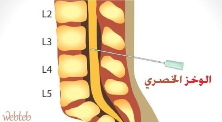 اليك اعراض واسباب التهاب السحايا