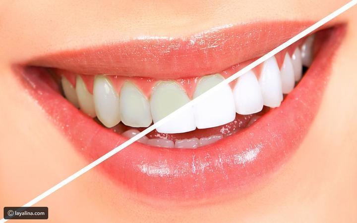 قلم تبييض الأسنان فوائده وأضرار استخدامه